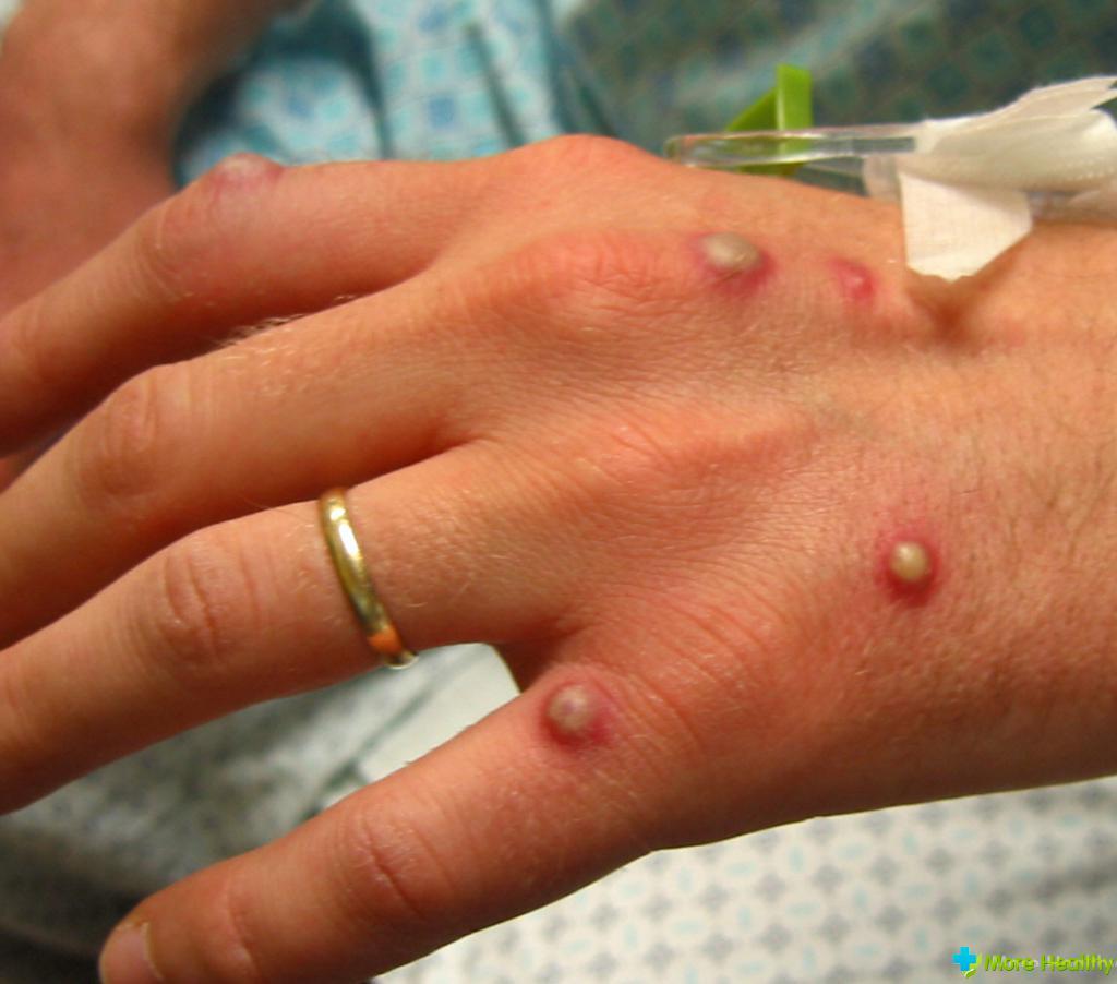 Пиодермии фото