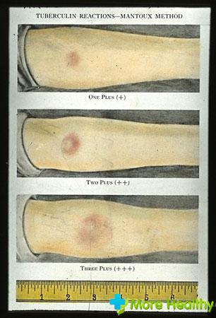 аллергия на манту и диаскинтест
