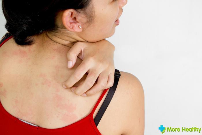 температура на нервной почве симптомы компенсационные выплаты матерям