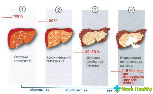 Болезнь печени кароль