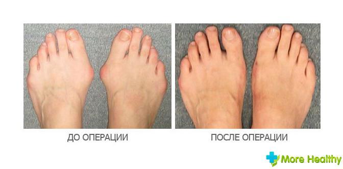 Наросты суставов пальцев ног упражнения для спины и суставов видео