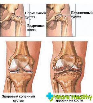 Что делать если боль в позвоночнике отдает в ноги