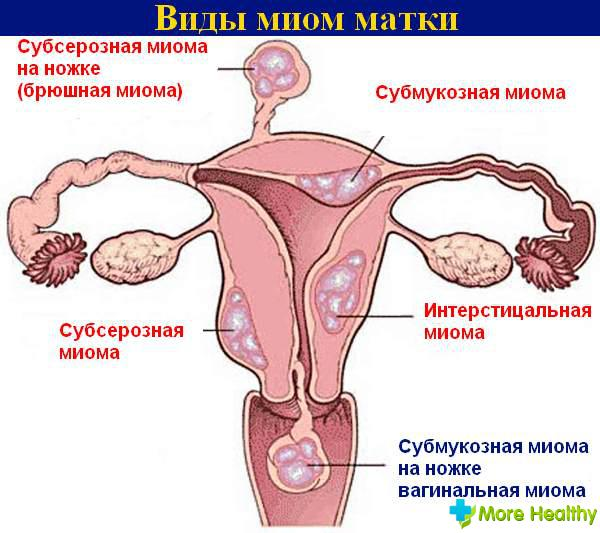 Фото чем делают аборт
