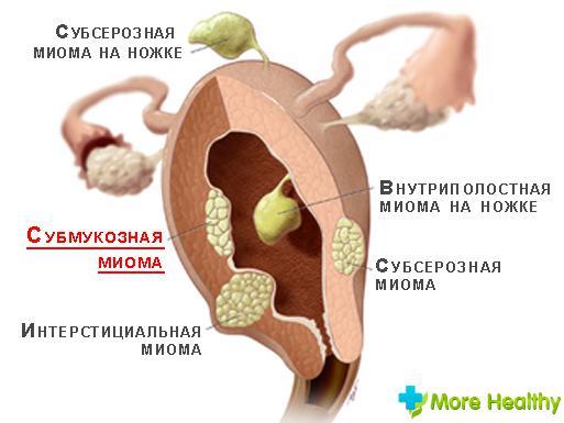 Удаление миомы матки послеоперационный период