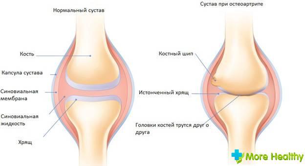 народные средства при болях в суставах плеча