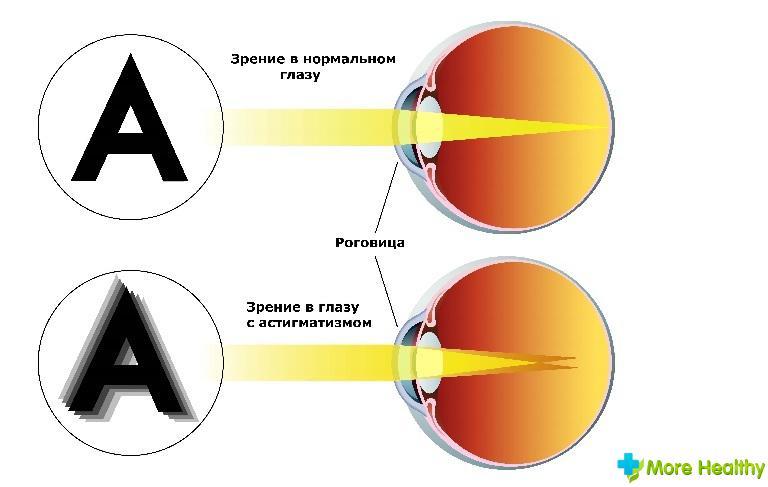 Как быстро вы улучшить зрение