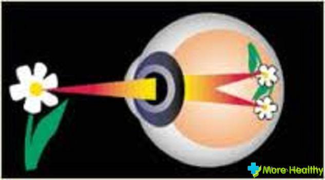 Улучшить зрение после работы на компьютере