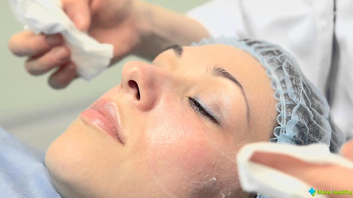 народные способы удаления волос на лице