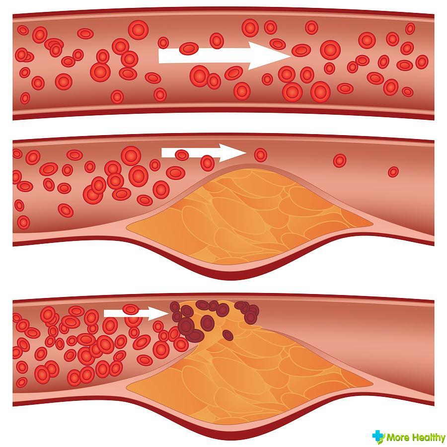 Какие продукты нельзя есть при повышенном холестерина