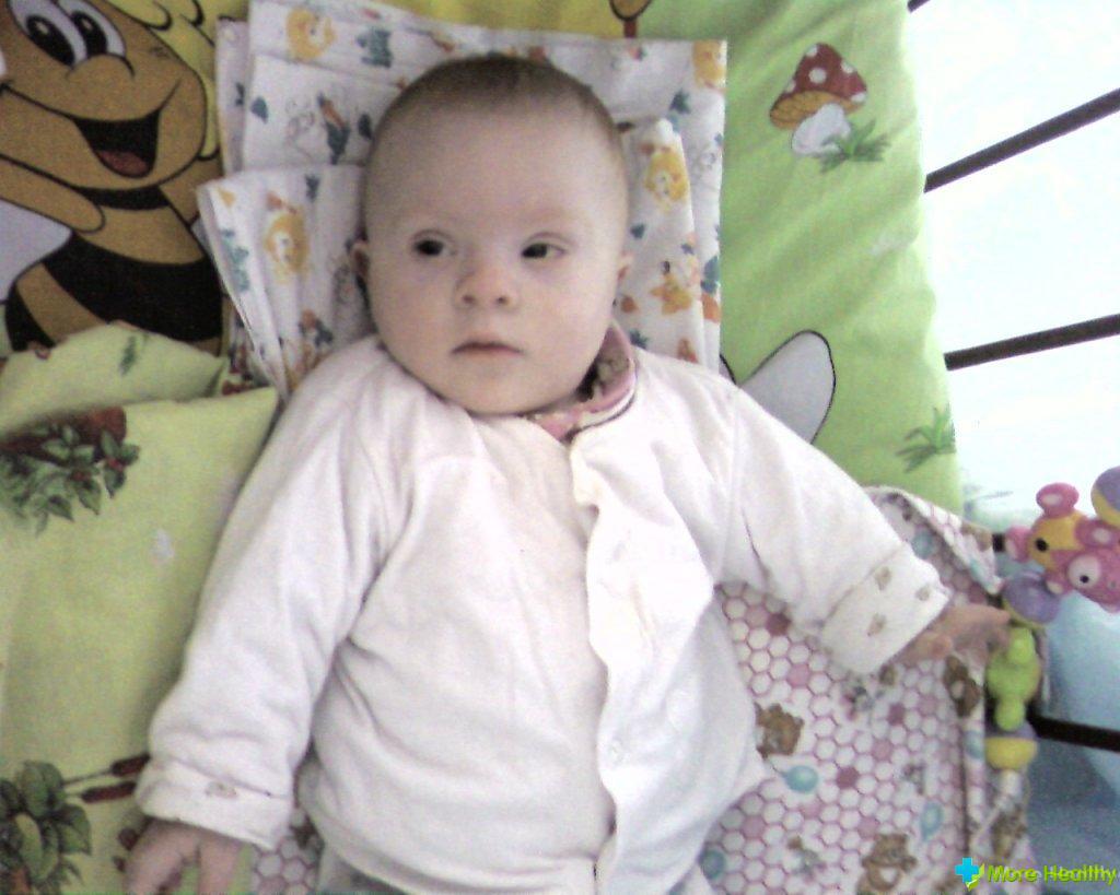 Ребенок дауна фото новорожденных