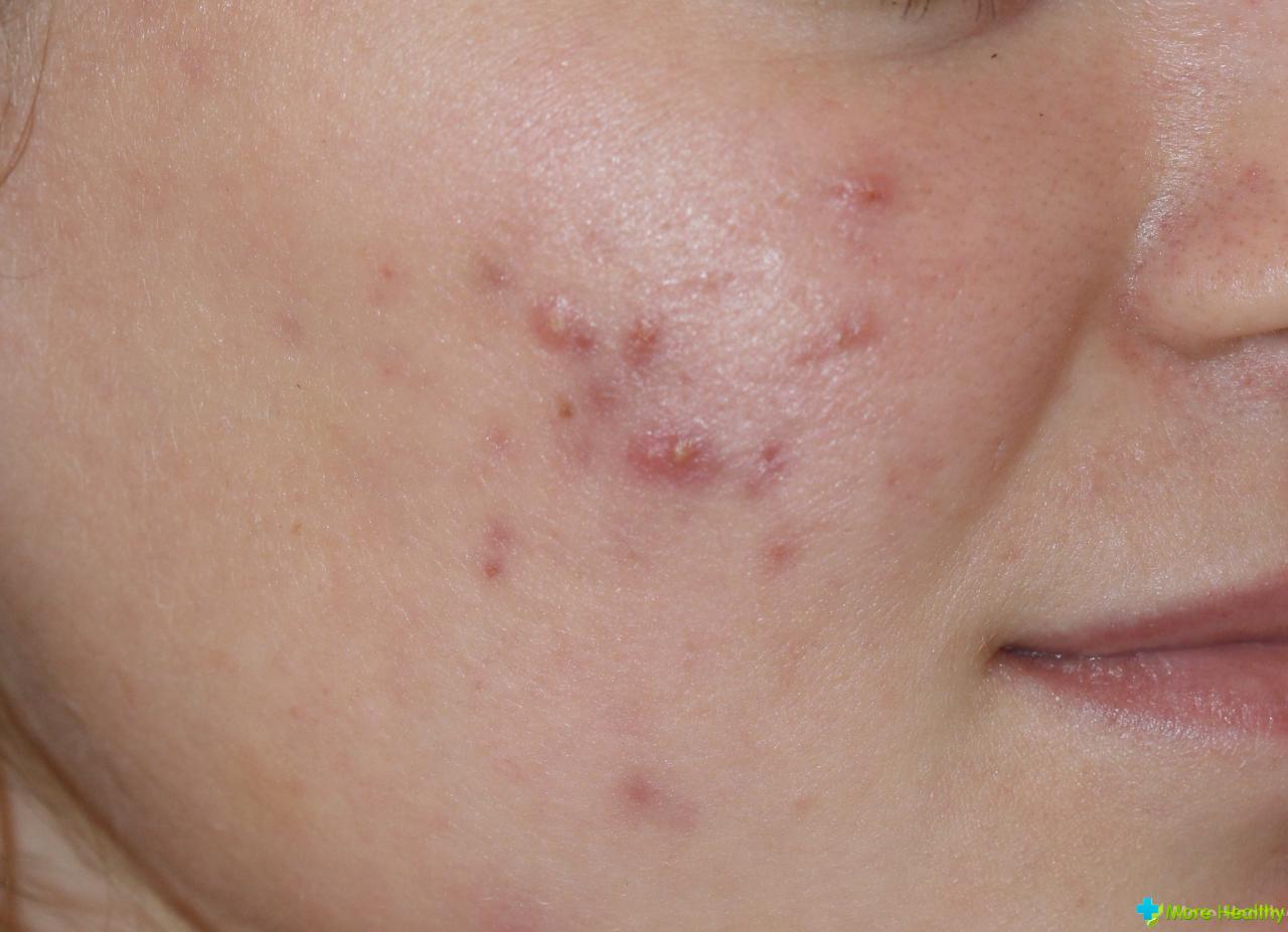 болезнь рожа  на лице