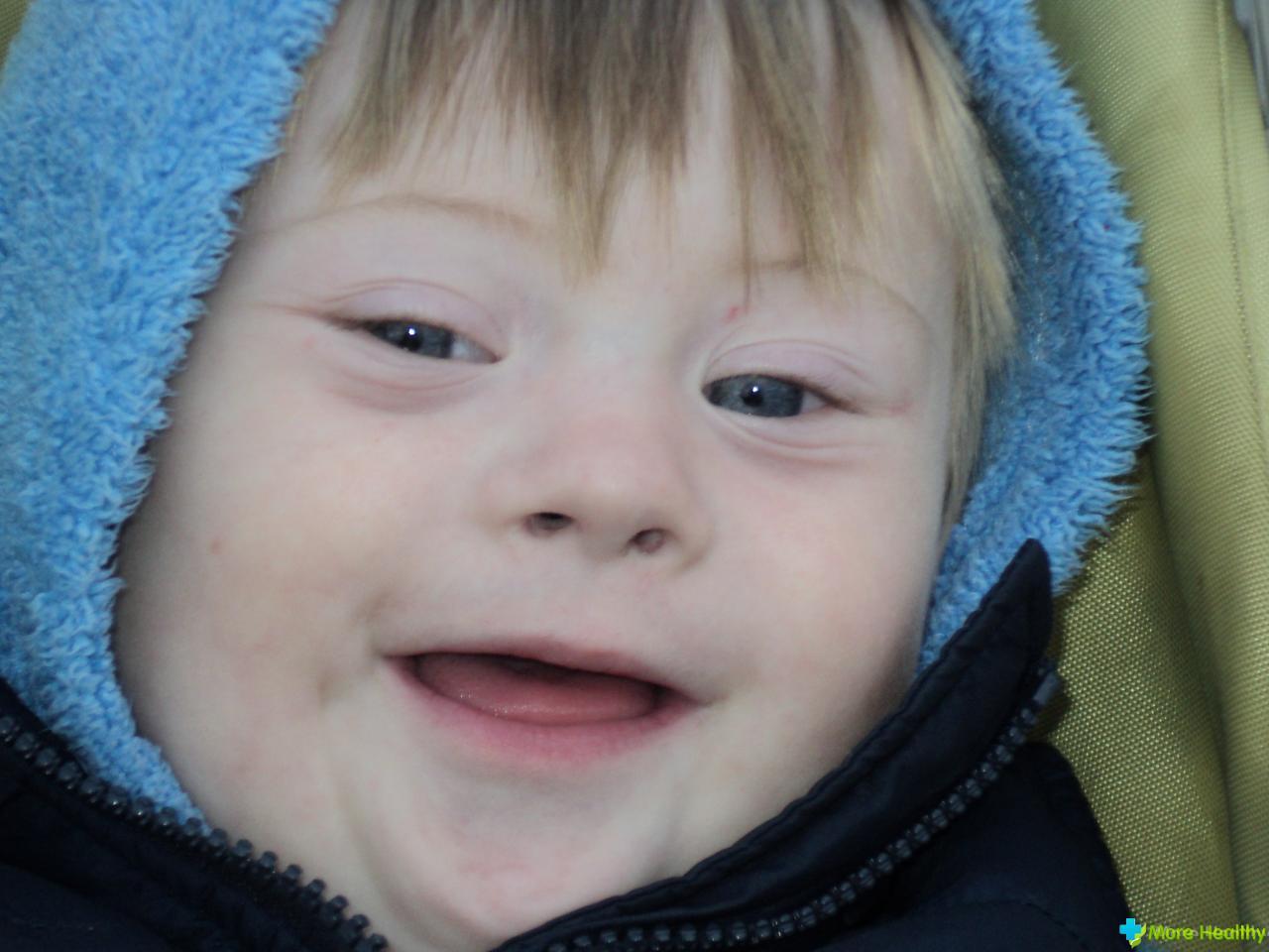 Какими рождаются дети с синдромом дауна фото