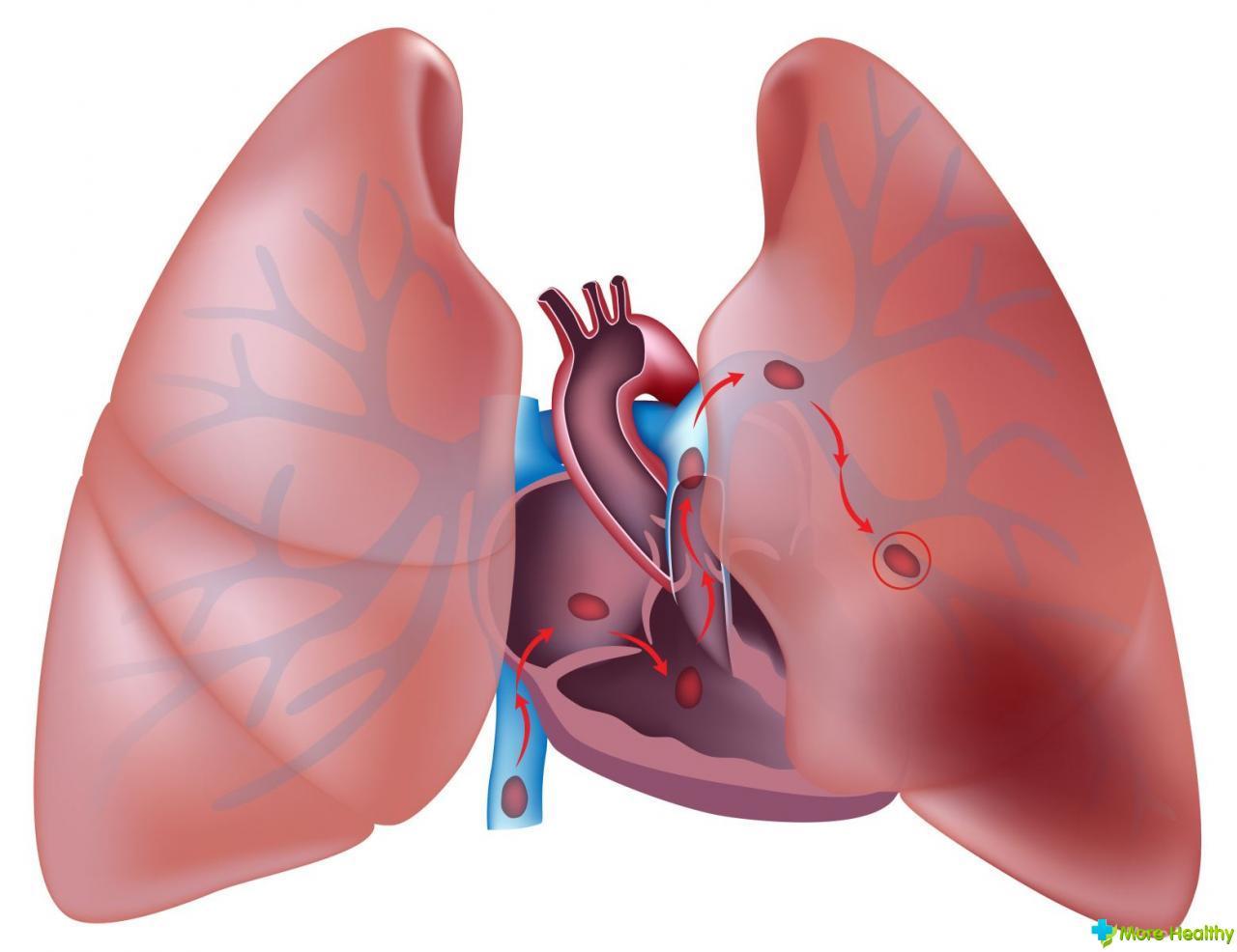 высокий холестерин в крови что делать отзывы