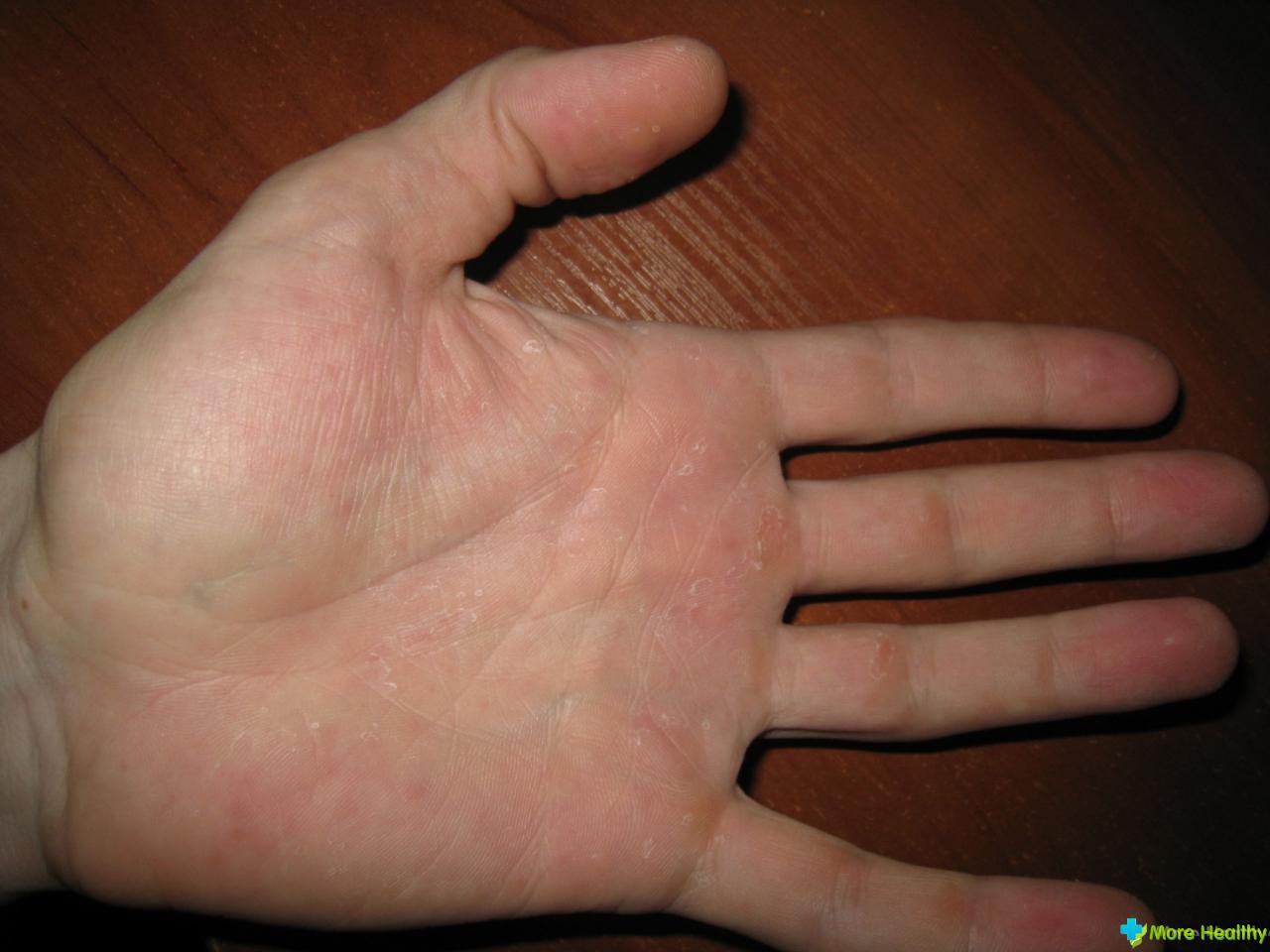 Скрытый грибок ногтя на руках