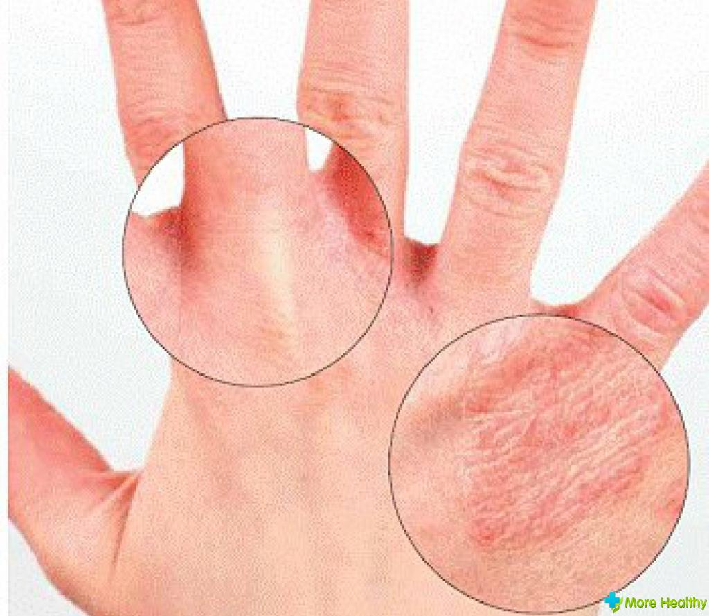 аллергия кожи на лейкопластырь что делать