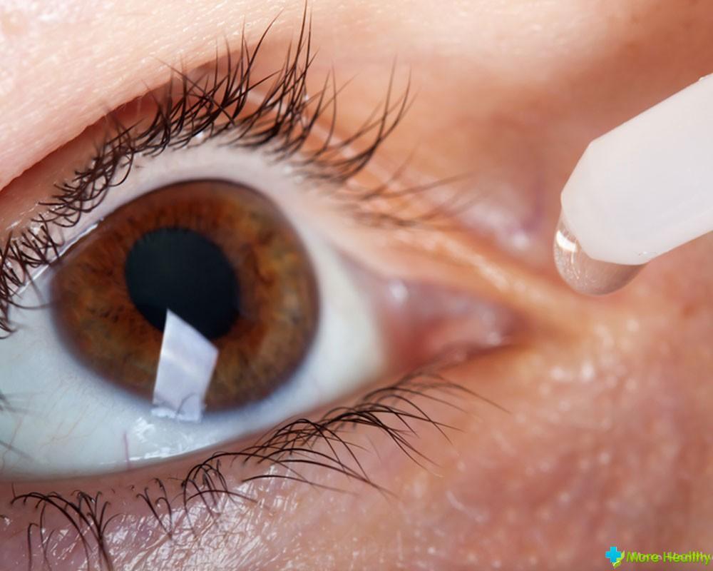 глазные капли при аллергии для детей зиртек