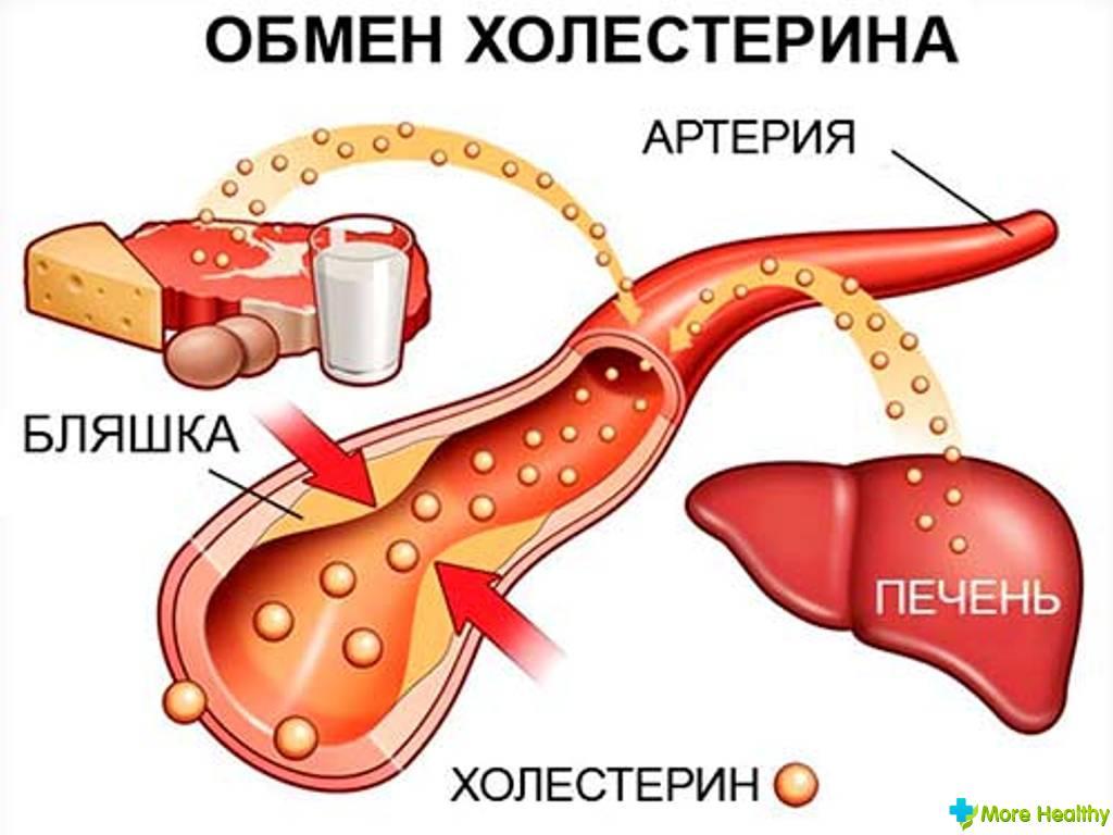 Повышен холестерин при беременности в крови