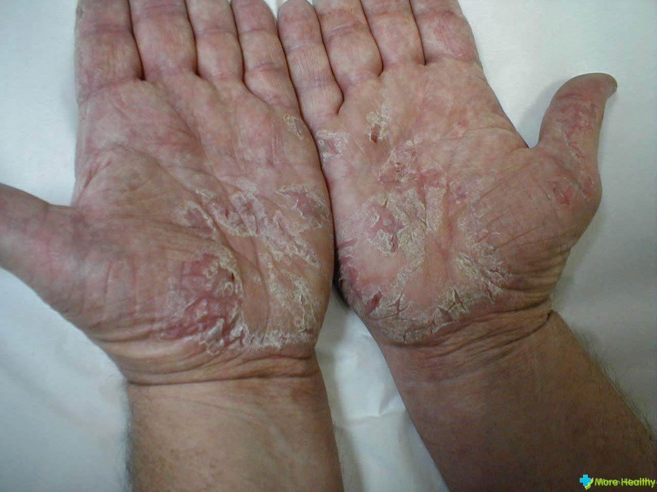 кожные черви у человека