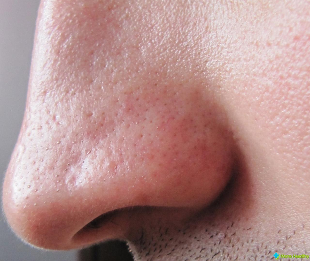 Грибок кожи тела и как лечить