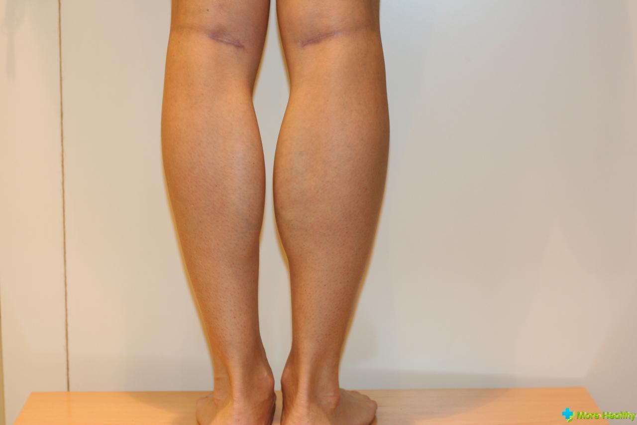 Ушиб голени: как же проводить лечение