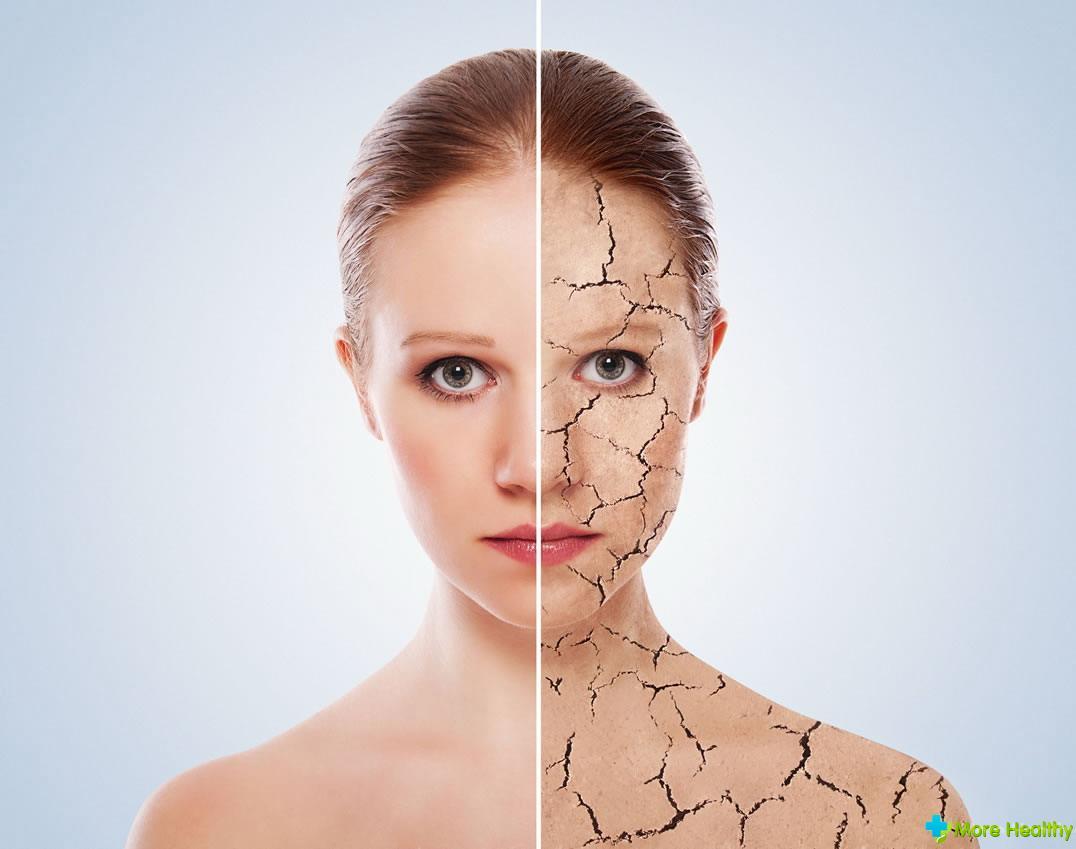 Морщины. Причины появления морщин. Как предотвратить появление морщин