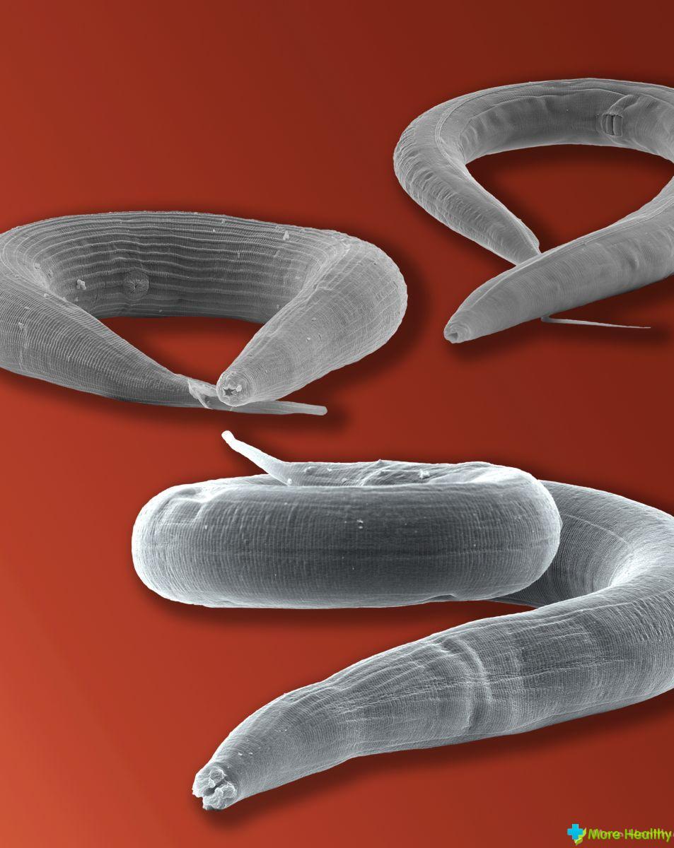 виды глистов у человека симптомы