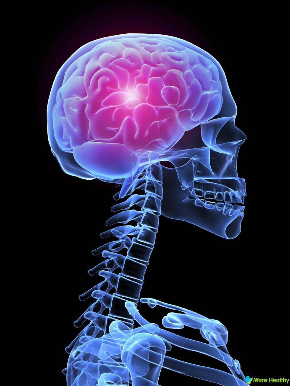 Нарушение мозгового кровообращения преходящее