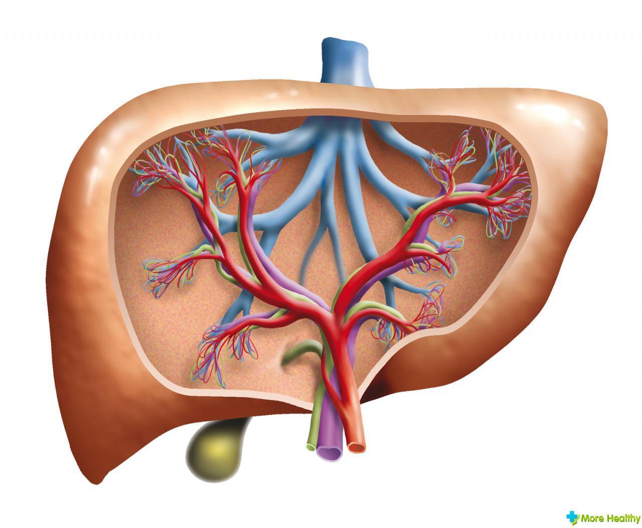 Хронический вирусный гепатит с высокой степени активности