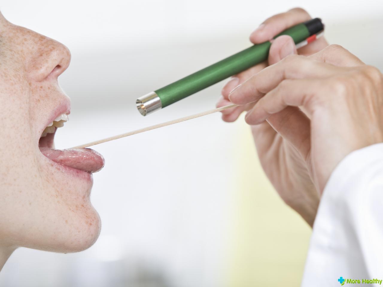 воспаление язычка в горле: