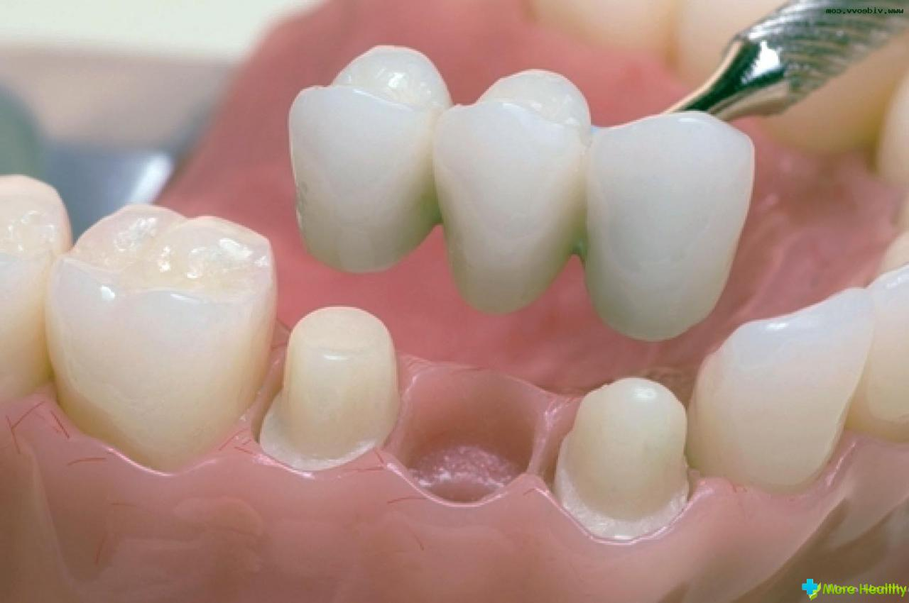 Перебазировка Зубного Протеза