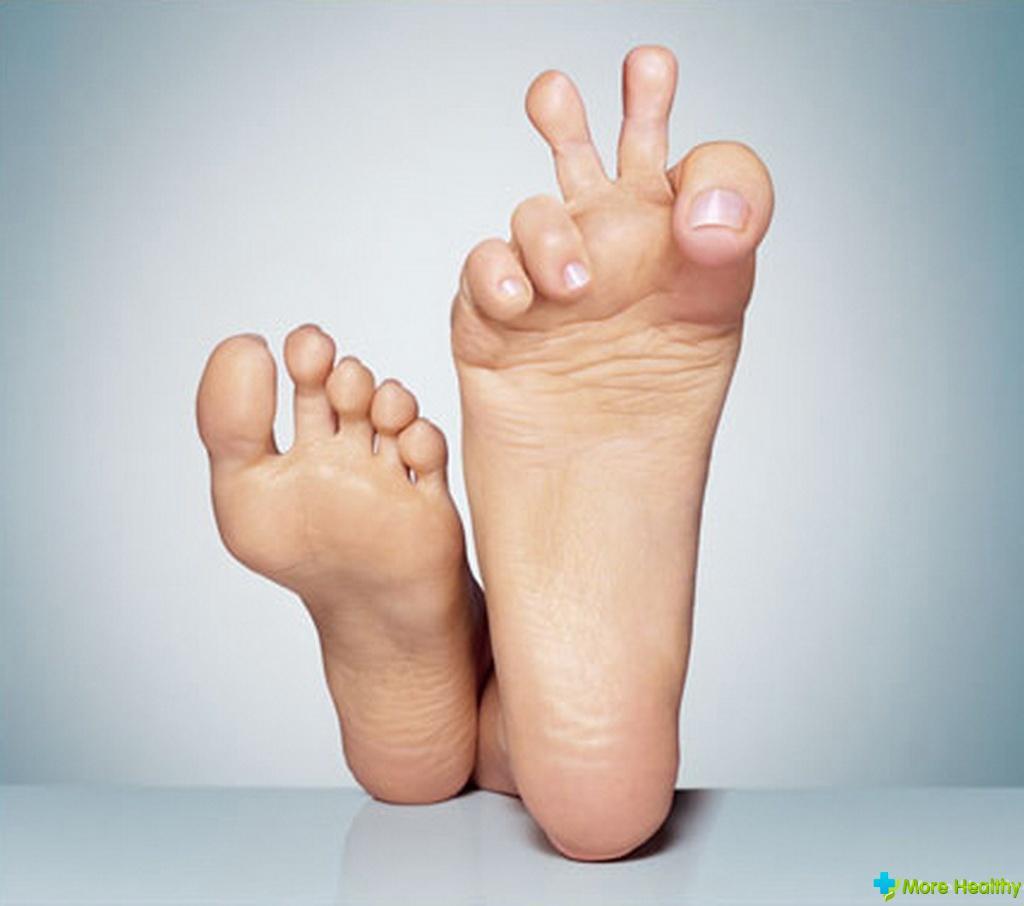 Как вылечить вросший ноготь на ноге с грибком