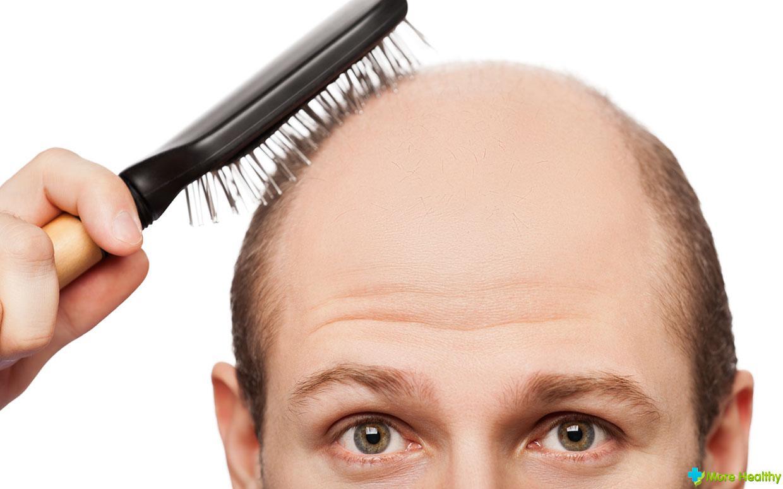 Шампунь от выпадения волос без сульфатов