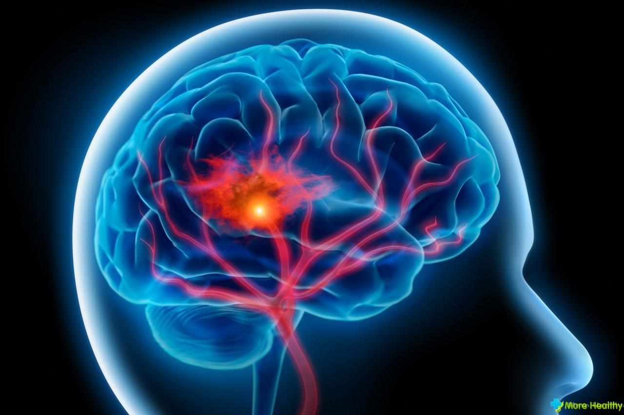 Транзиторная ишемическая атака: причины, лечение и профилактика