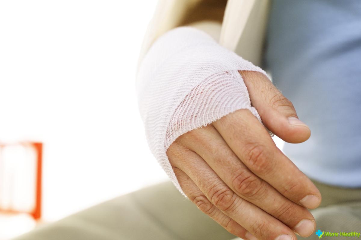 Инструкция самостоятельное наложения гипса на руку