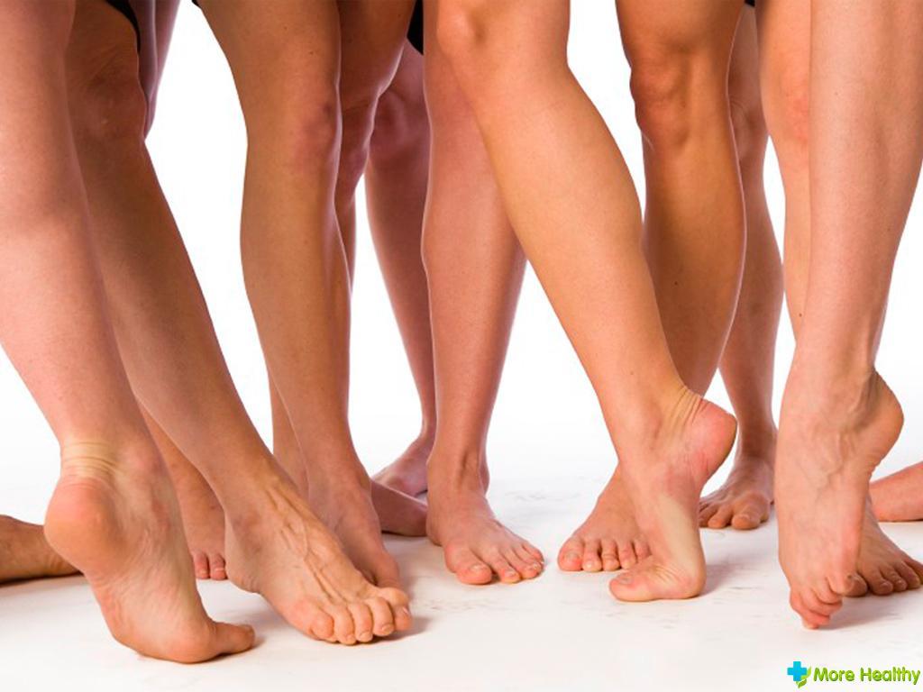 Варикозные пятна на ноге