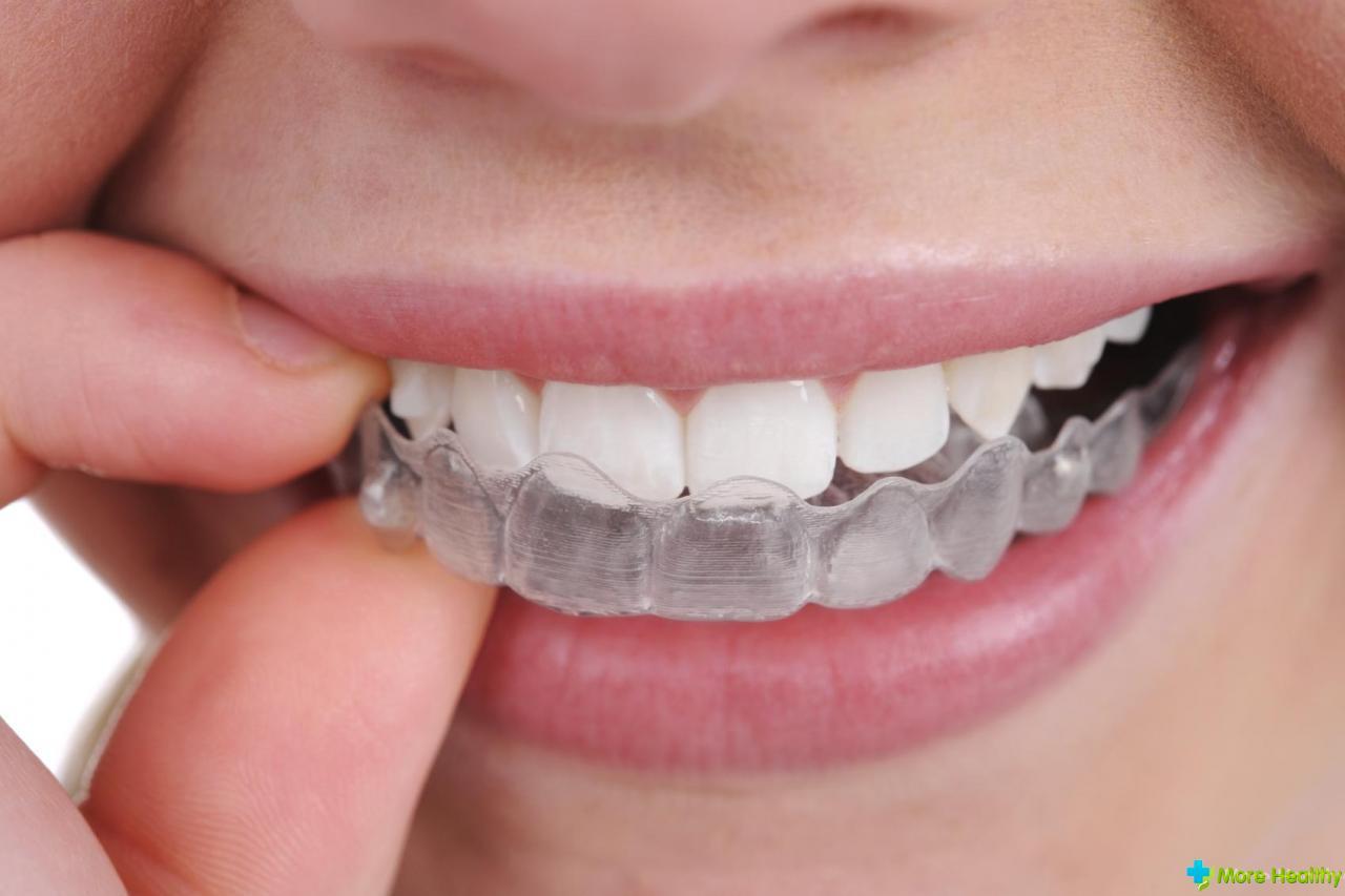 Установка коронки на зуб в Москве поставить коронки на 21