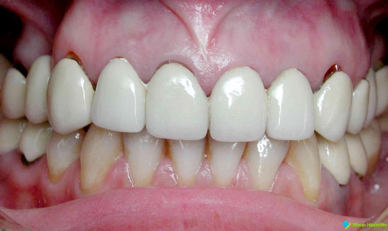 Оголены зубы около десен 123