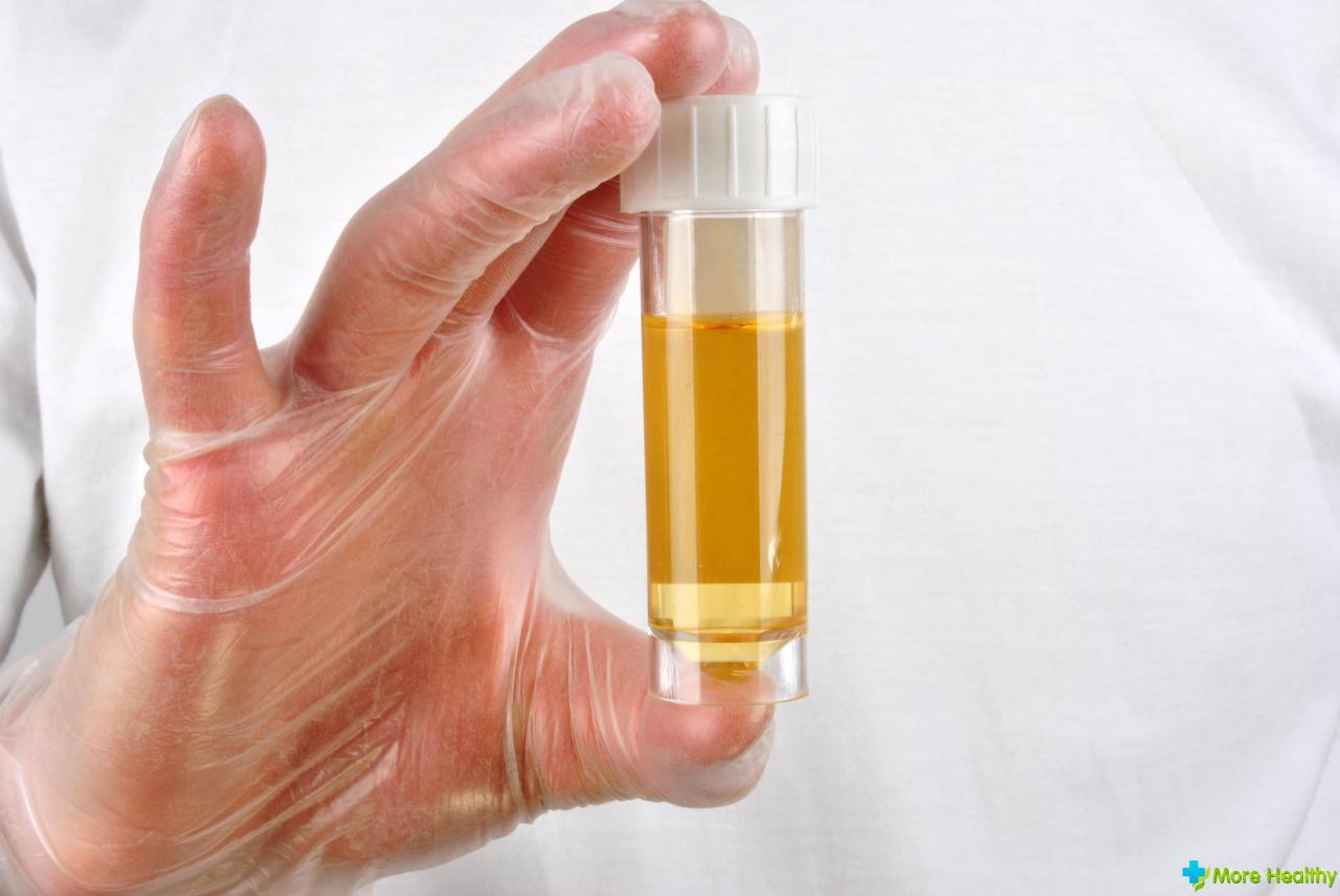 Лечение воспаленных прыщей на лице в домашних условиях