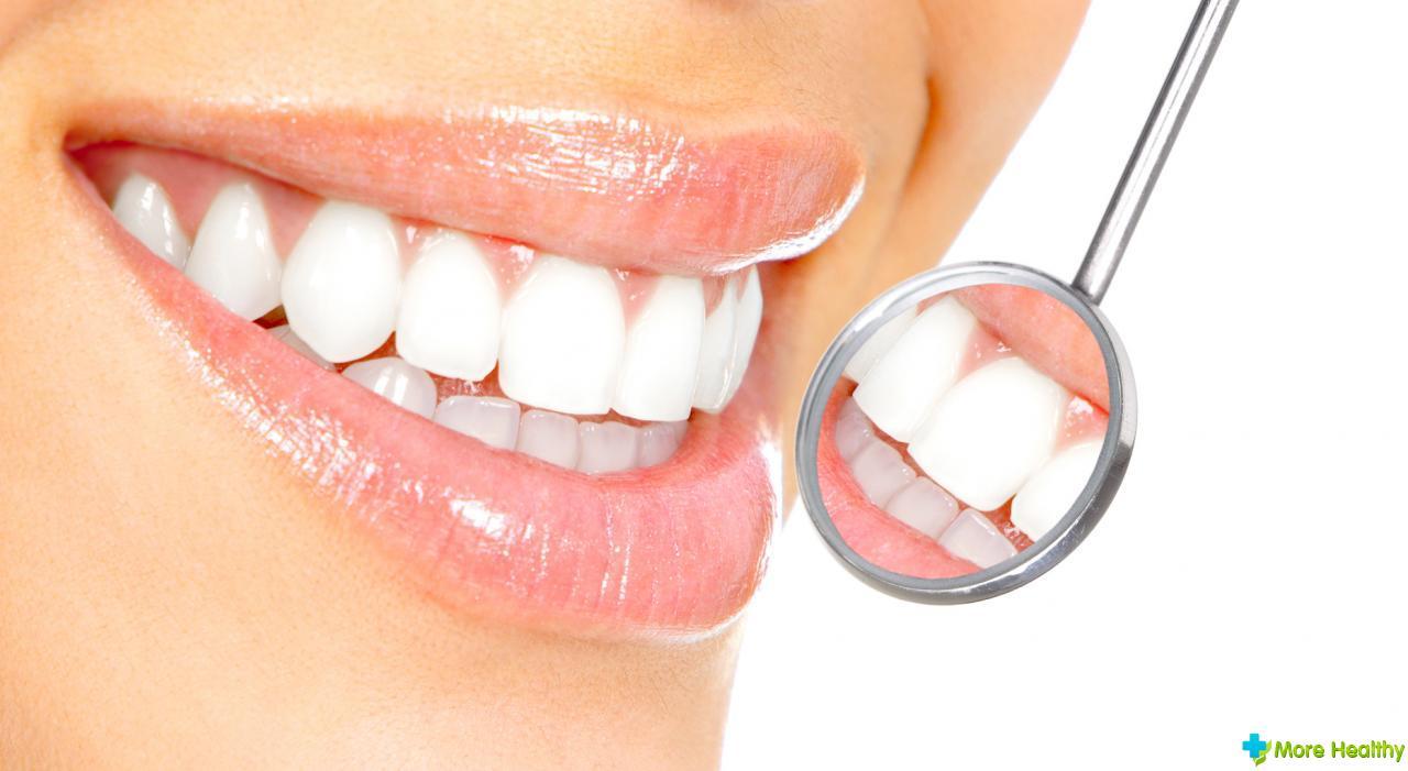 стоимость отбеливания зубов в стоматологии