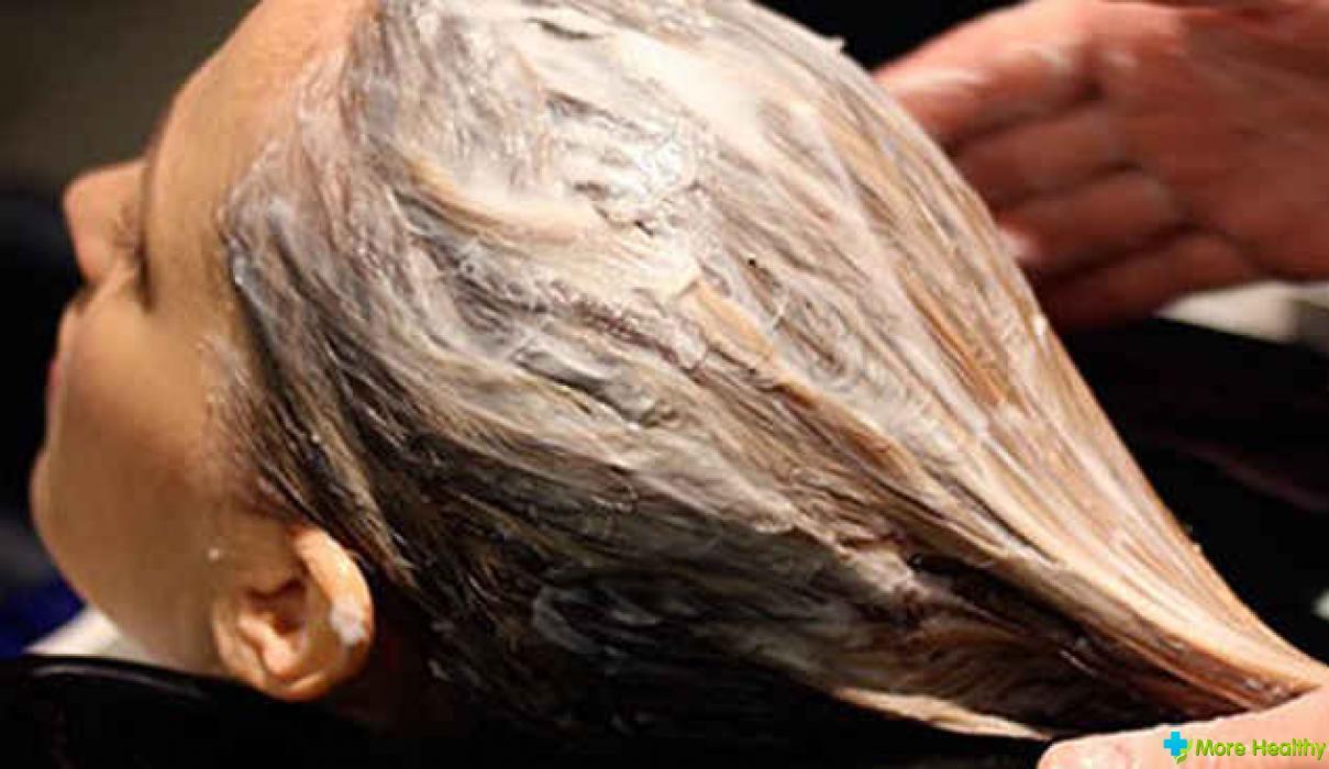Выпадение волос из за железодефицита