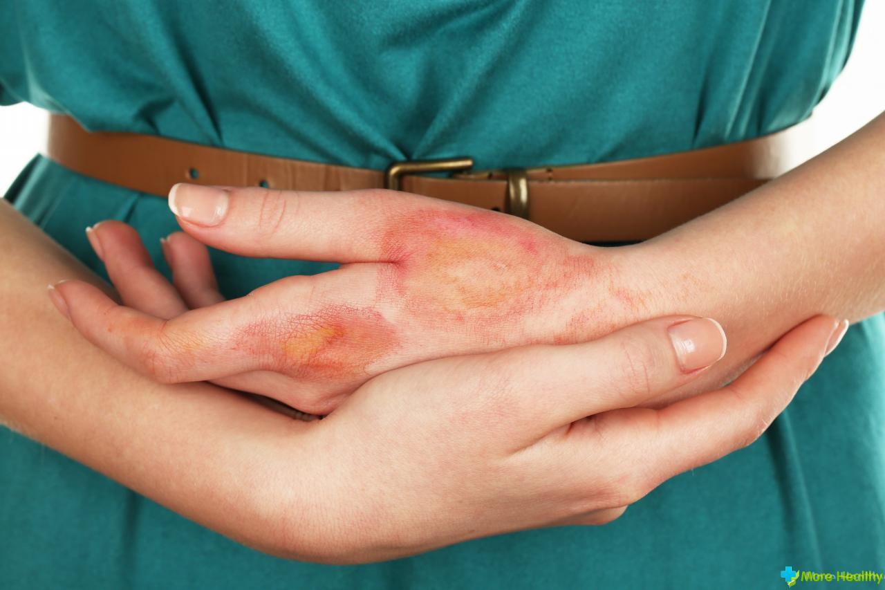 Как лечить перианальный дерматит