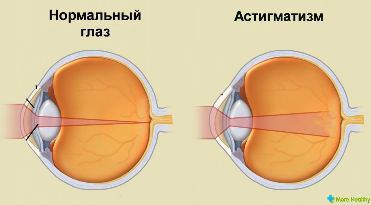 taking a look at astigmatism Take a test that measures astigmatism an online astigmatism test will ask you to cover one eye and look at a series of lines you will be asked if some of the lines appear darker than others.