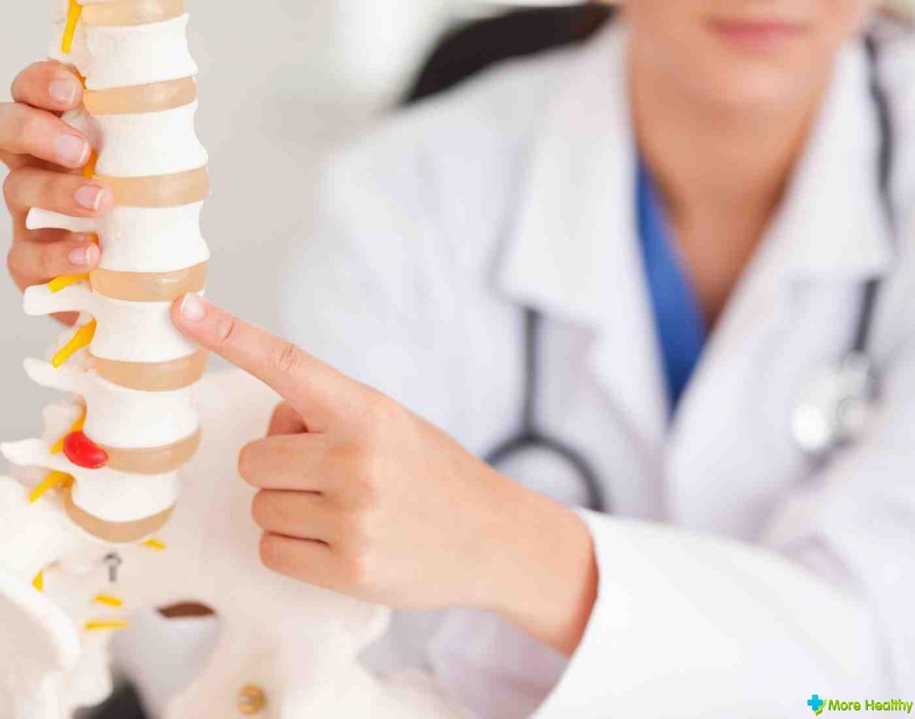 Клинический правильный формулировка диагноза остеохондроз