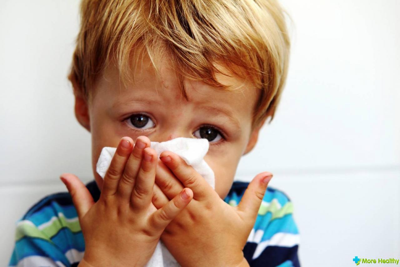 Как в носу у детей фото