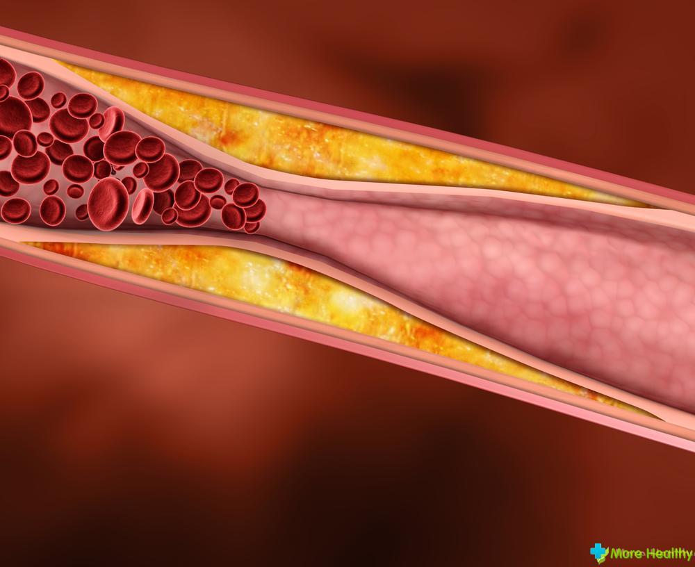 medicatie cholesterol