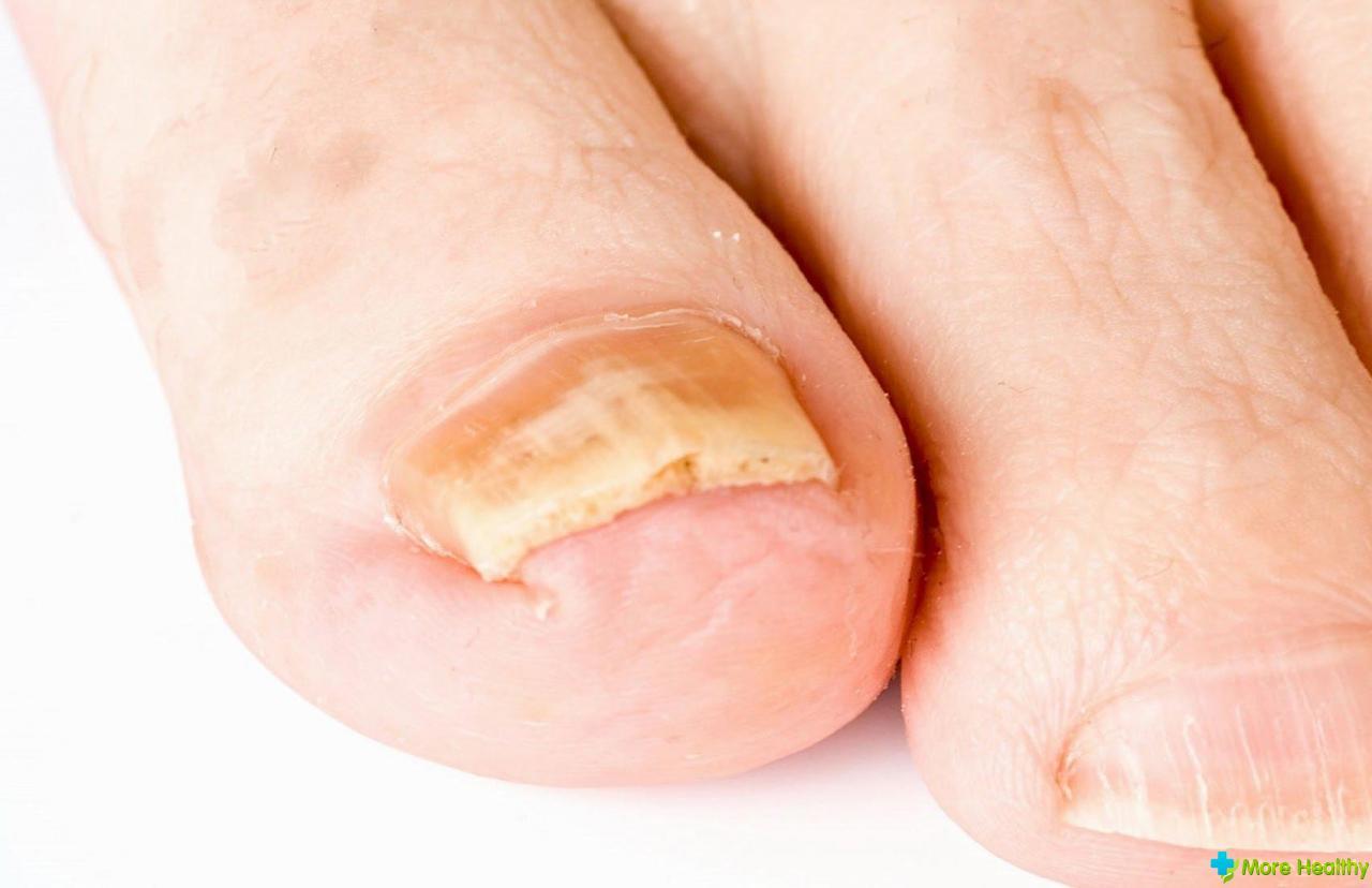 Лечение вросшего ногтя. Народные средства и медикаментозные методики