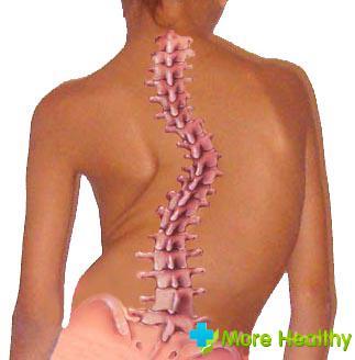 Как лечат искривление грудной клетки