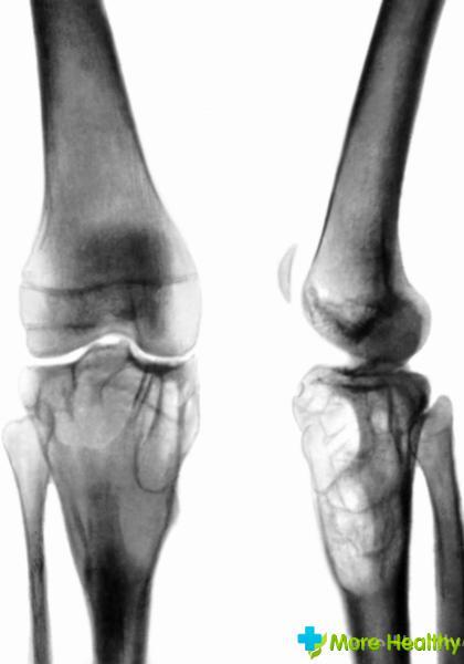 как вылечить артроз в коленном суставе народными средствами