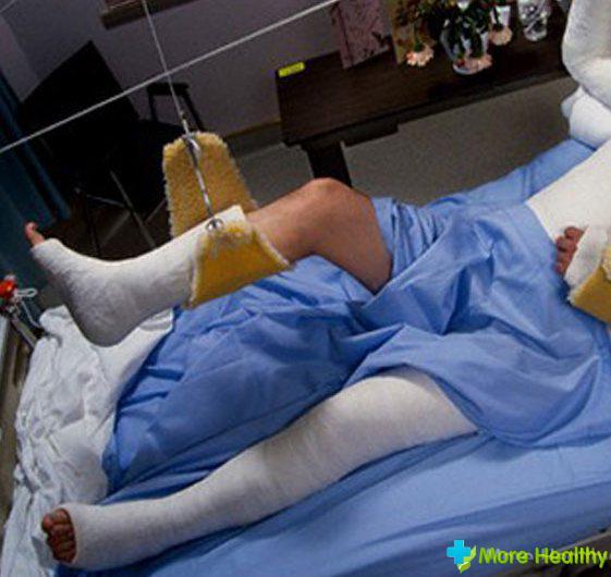 секс если парень сломал ногу