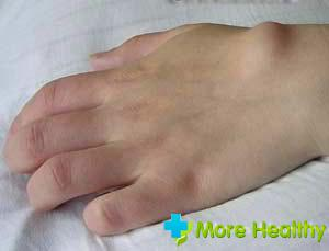 аллергия в паховой области у женщин